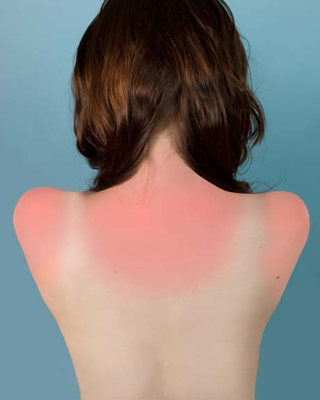 Brea Souders, Sunburn in Naples @ Center for Photography at Woodstock